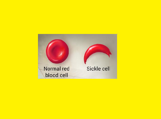 Sickle cell Anemia – Treatment Symptoms Causes Diagnosis Genetics